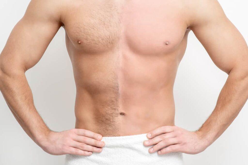 depilacion laser para hombres en murcia