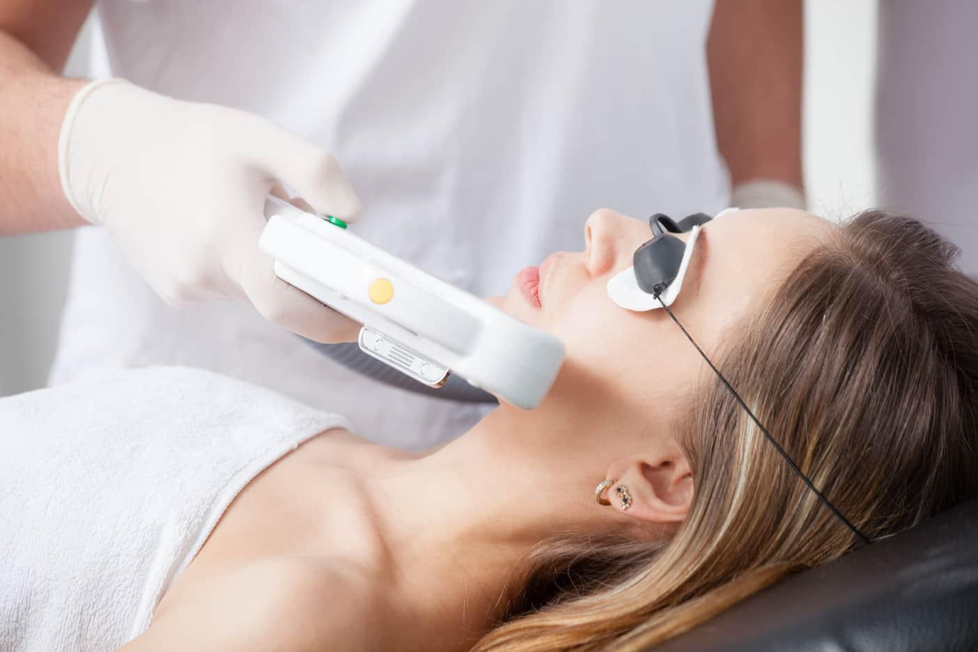 depilación facial con laser murcia